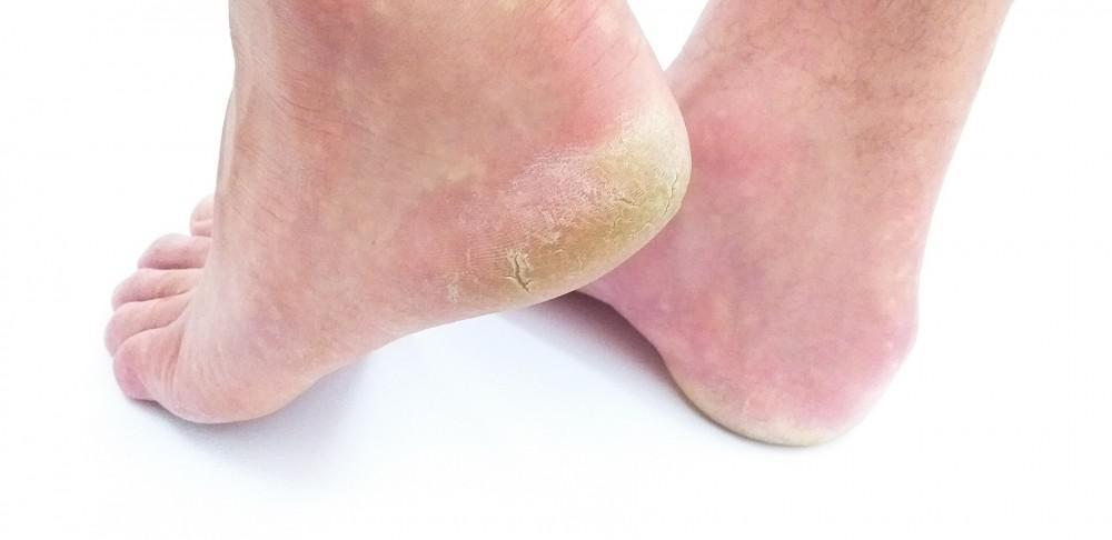 Callus of foot