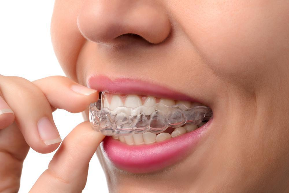 Why Invisalign® Might Be Right for You