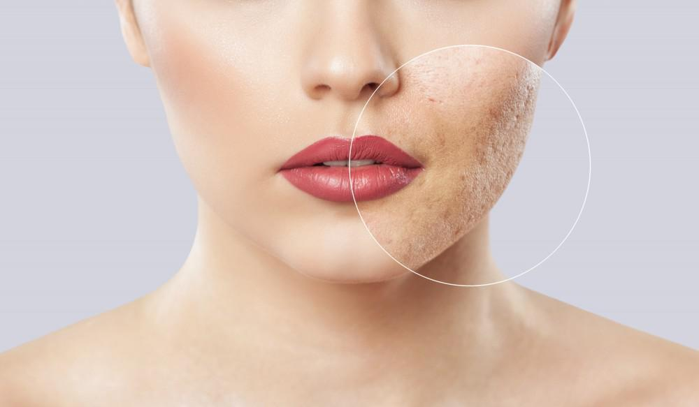 Stop Hiding Behind Your Acne Scars: Icon™ Laser Can Help You Feel More Like Yourself Again