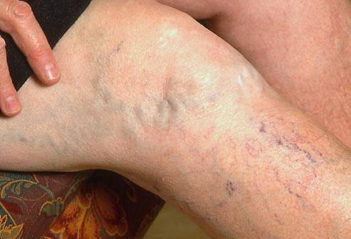 Should I Be Worried About Varicose Veins?