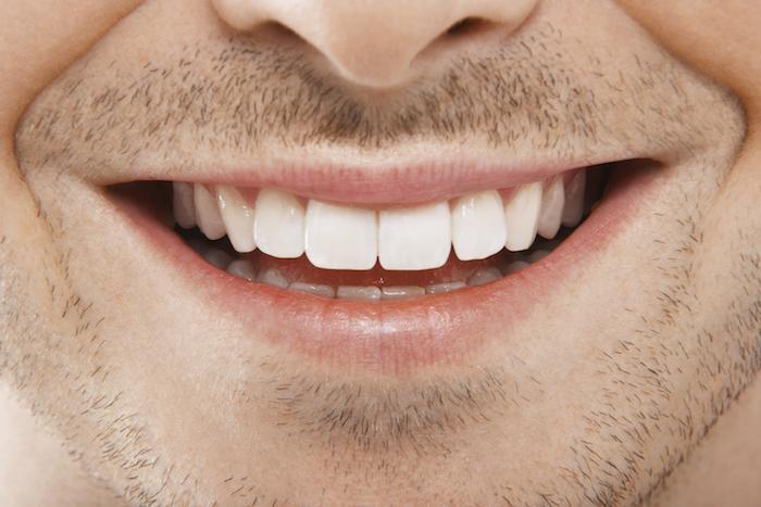 Does Teeth Whitening Hurt?