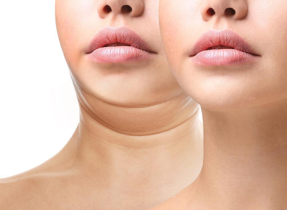 Say Goodbye to Your Double Chin