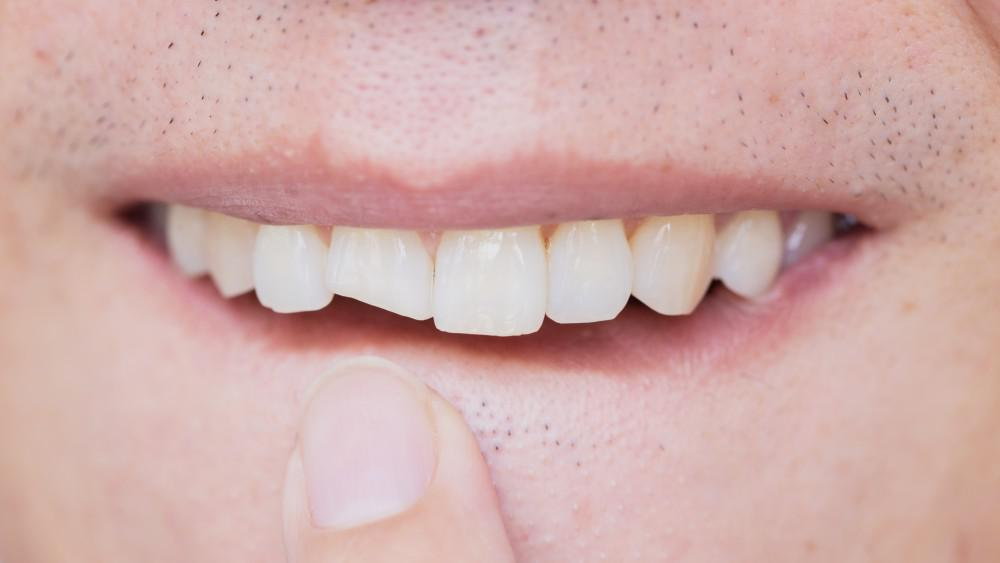 Why You Shouldn't Ignore a Cracked Tooth