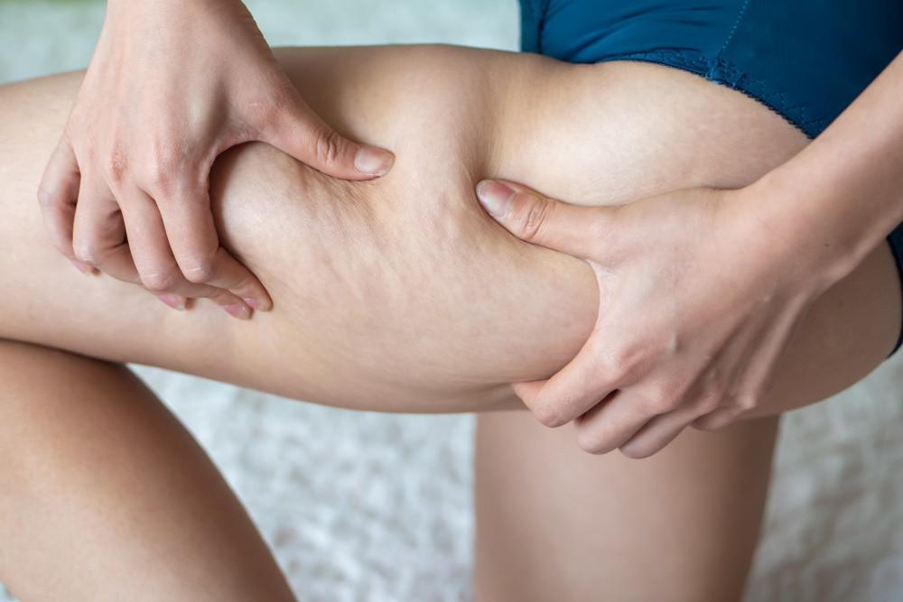 What Can Help Get Rid of My Cellulite?