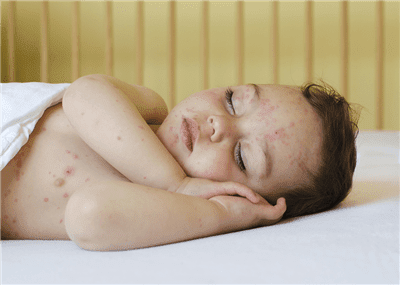 CDC: Chickenpox Down 85%