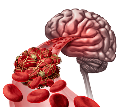 New Stem Cell Findings May Reverse Stroke Damage