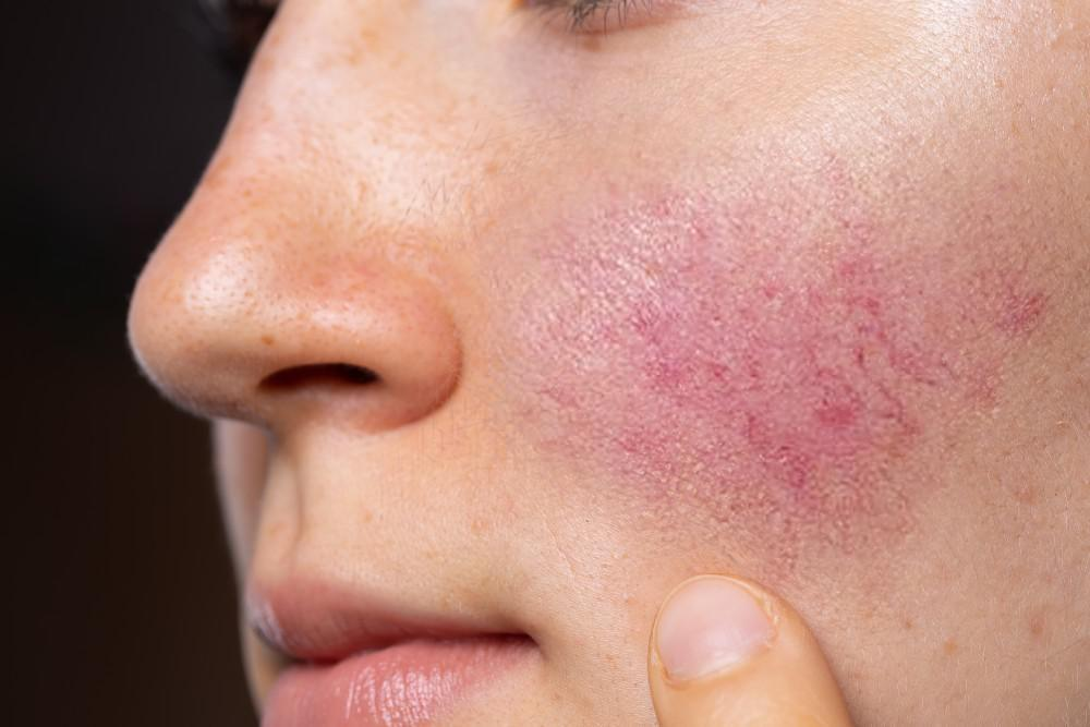 We Can Help You Get Rid of Rosacea