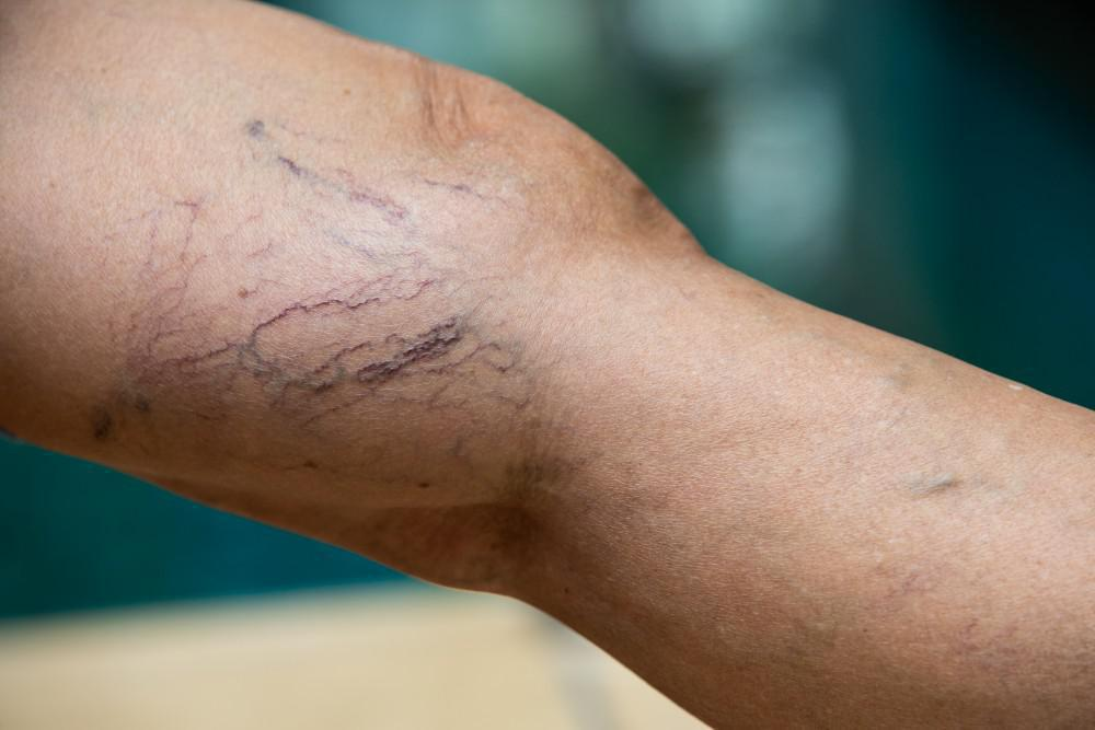 Diabetes and Its Impact on Your Veins
