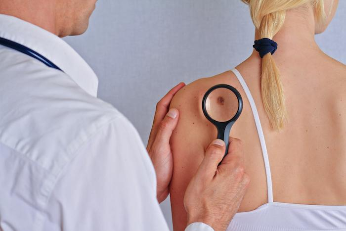 Who's at Risk for Skin Cancer?