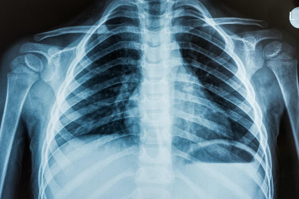 The Importance of an X-ray