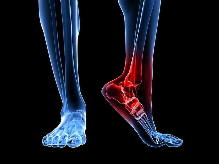 5 Sports Injuries That Affect the Feet
