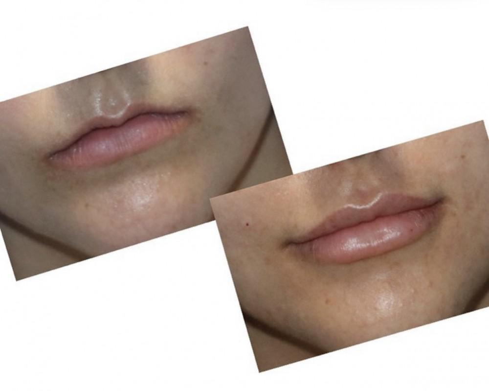 Post 2nd syringe of filler (done at separate appointments)