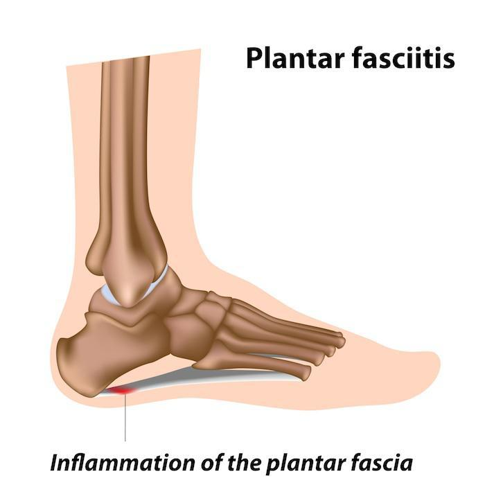 Why Do I Have Plantar Fasciitis?