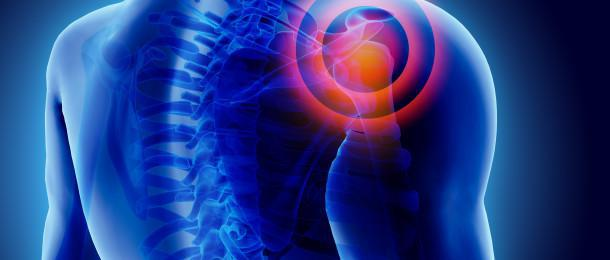 Natural Pain Relievers And Anti-Inflammatories