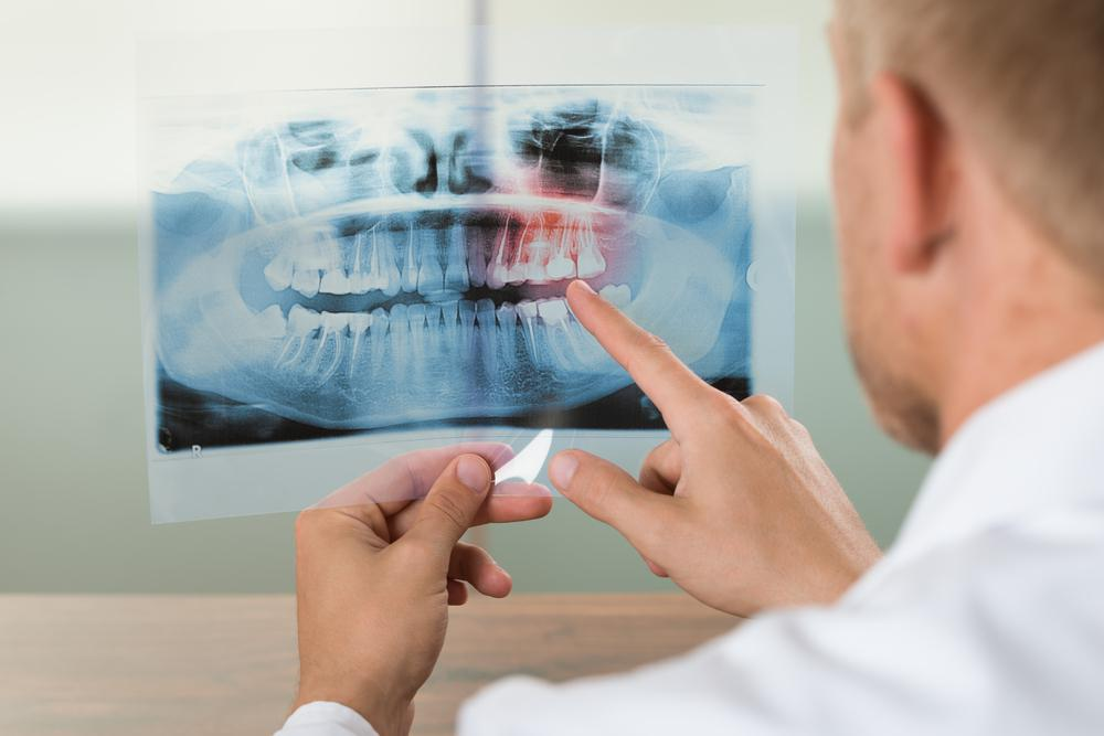 How Often Should I Get Dental X-Rays?