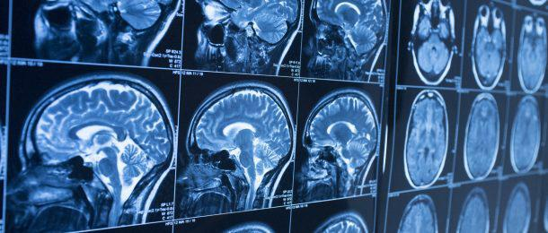 What Happens To The Brain When You Have Chronic Pain?