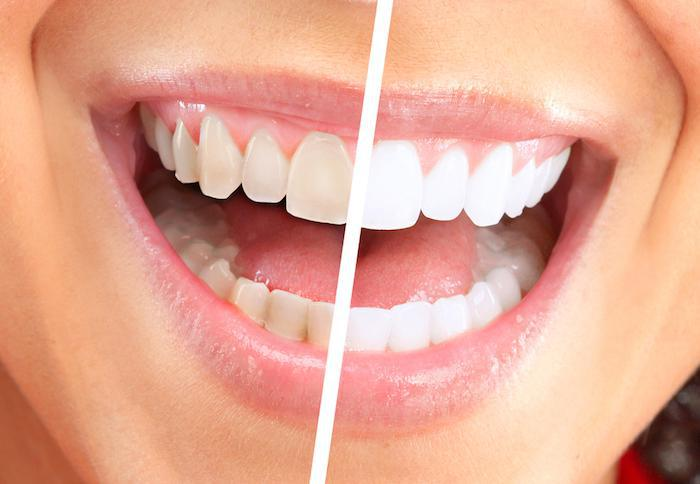 How Zoom!® Works to Whiten Your Teeth