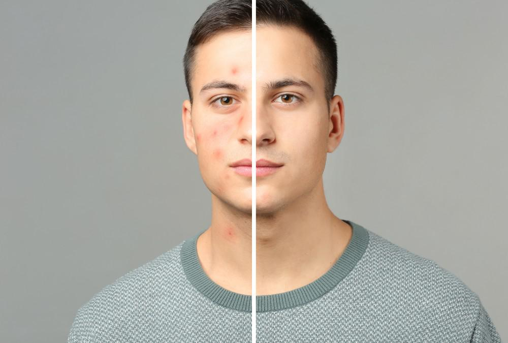 Laser Acne Reduction: What To Expect