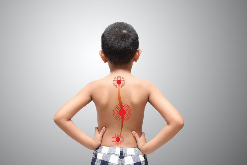 My Child Has Scoliosis. Now What?