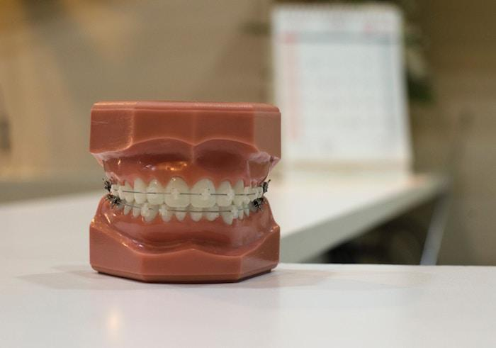 How to Maintain Your Dental Hygiene Routine With Braces