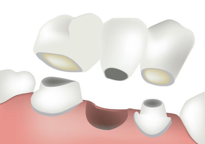 5 Reasons to Choose a Dental Bridge