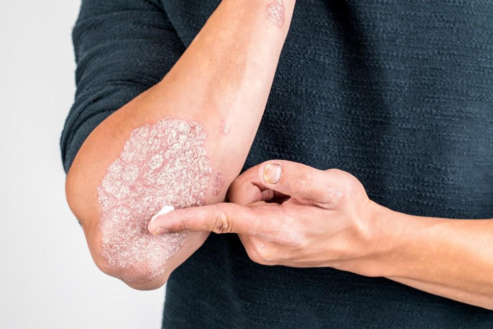 A man uses a dot of lotion on his pointer finger and applies it to a scaly psoriasis patch on his elbow.