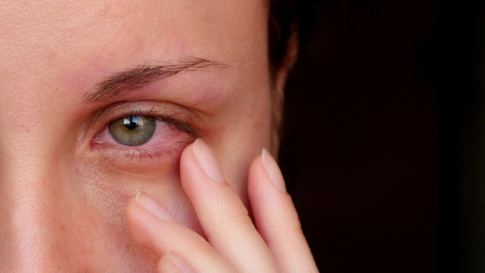 When to See a Doctor About Dry Eyes