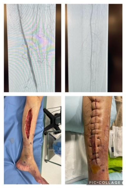 Another limb saved!!