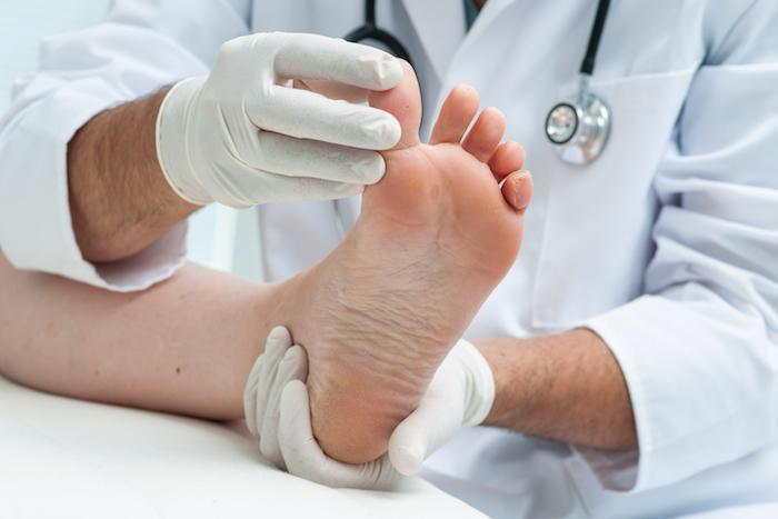 Myths and Facts About Athlete's Foot