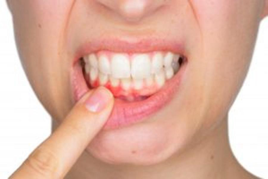 5 Tips for Preventing Periodontal Disease