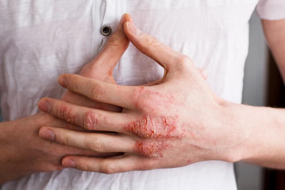 Have You Noticed That Your Skin is Dry, Itchy, and Inflamed? It Might Be Eczema