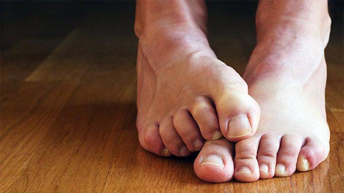 If You Have Diabetes, Your Feet Are in Danger
