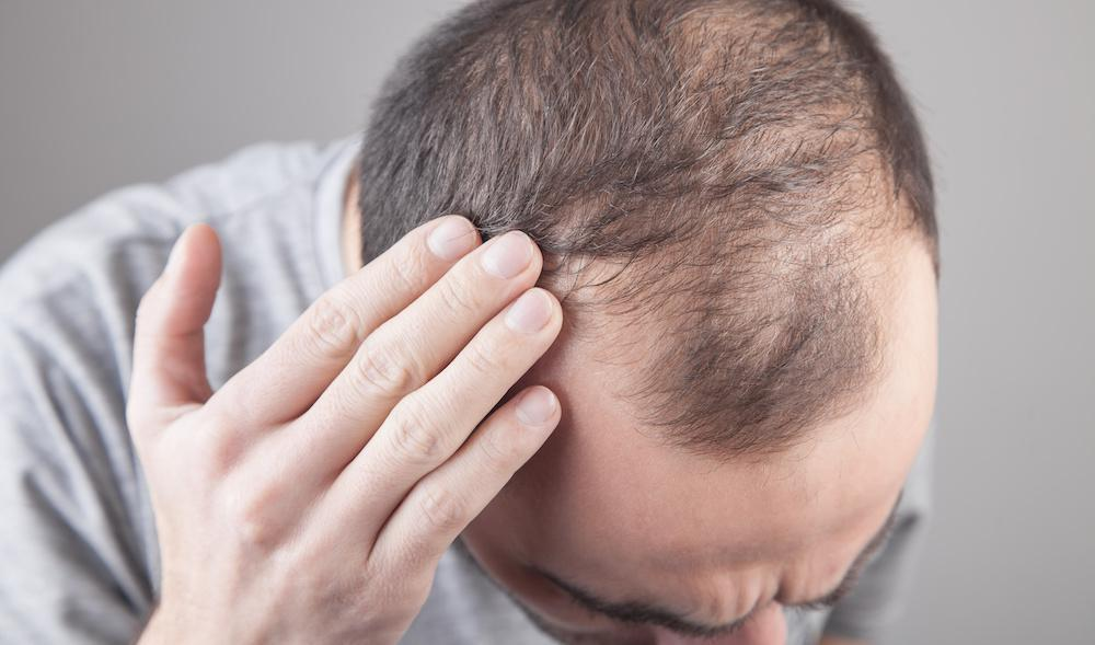 Male Pattern Baldness? We Can Help