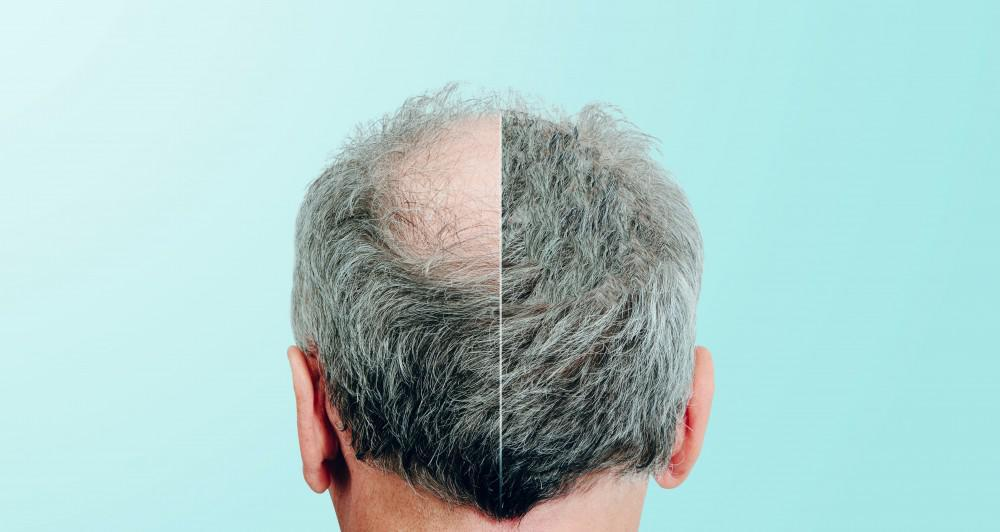 How PRP Works for Hair Loss