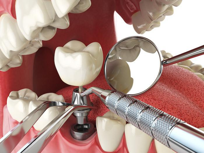 What Are the Components of a Dental Implant?