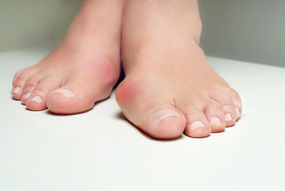 Help for Your Bunions