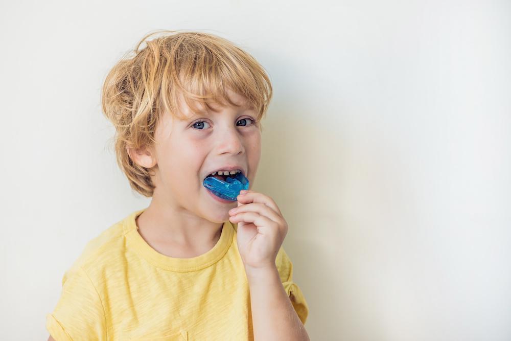 3 Benefits of a Mouthguard