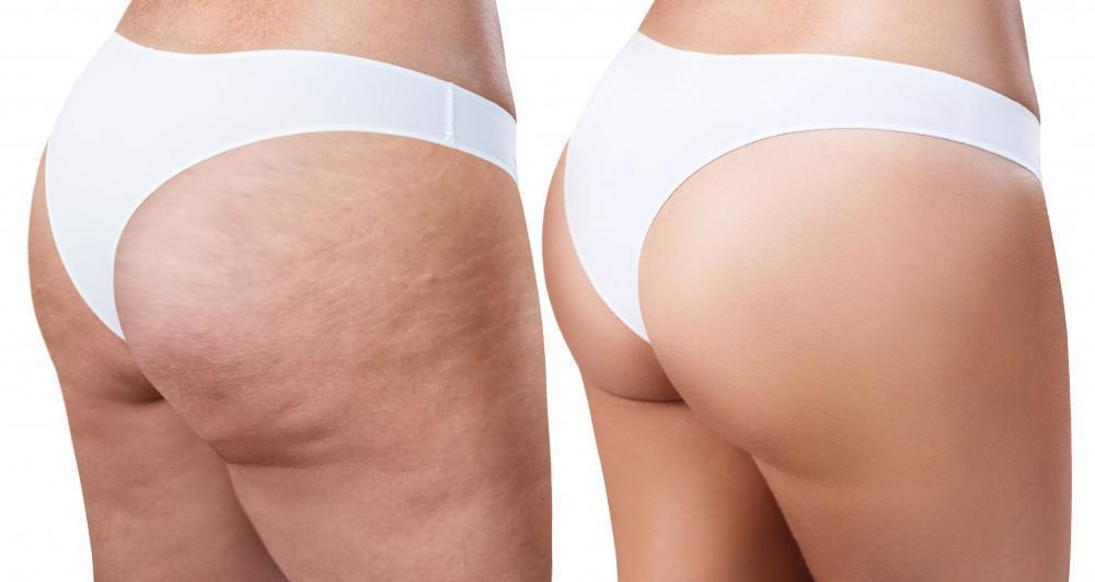 Why Does My Buttocks Have so Much Cellulite?