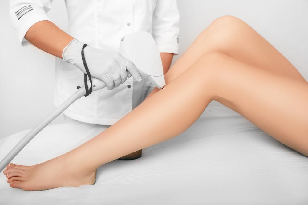 4 Benefits of Laser Hair Removal