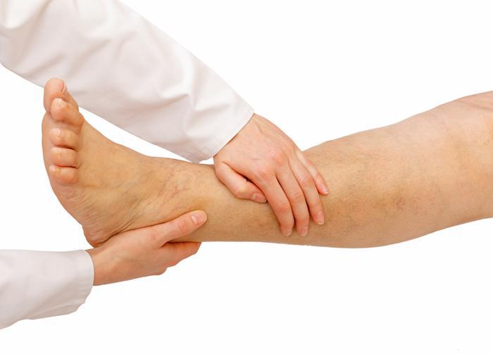 A Foot Sprain vs a Fracture: How to Tell the Difference