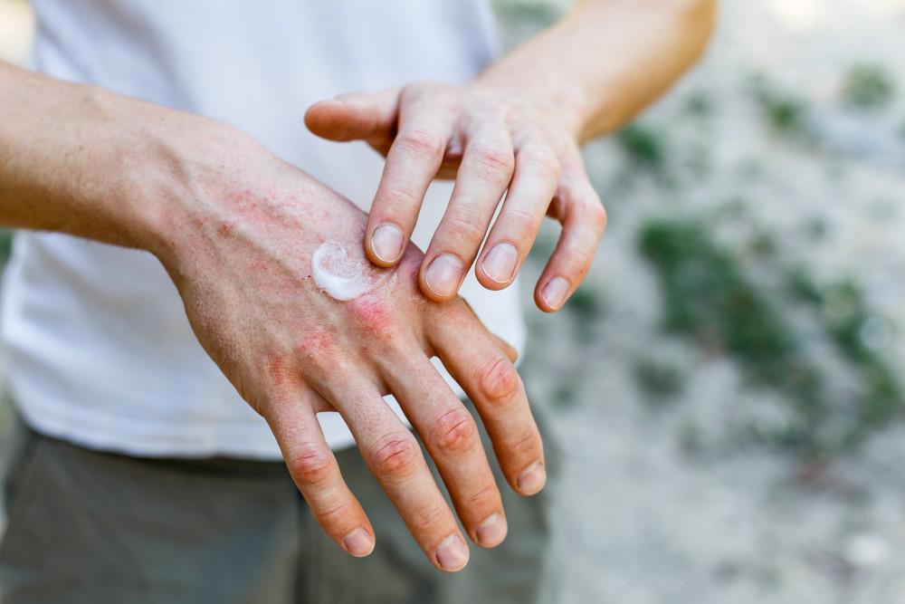 5 Common Eczema Triggers