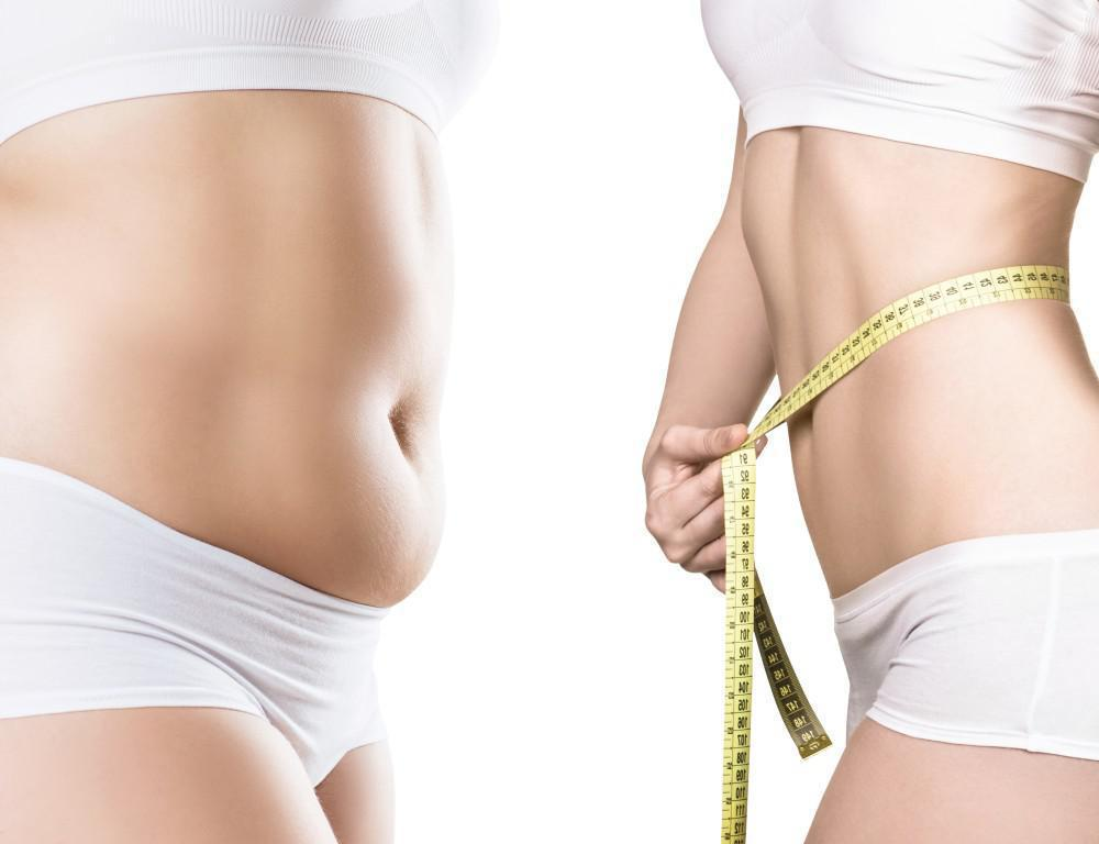 Am I A Candidate for Liposuction?