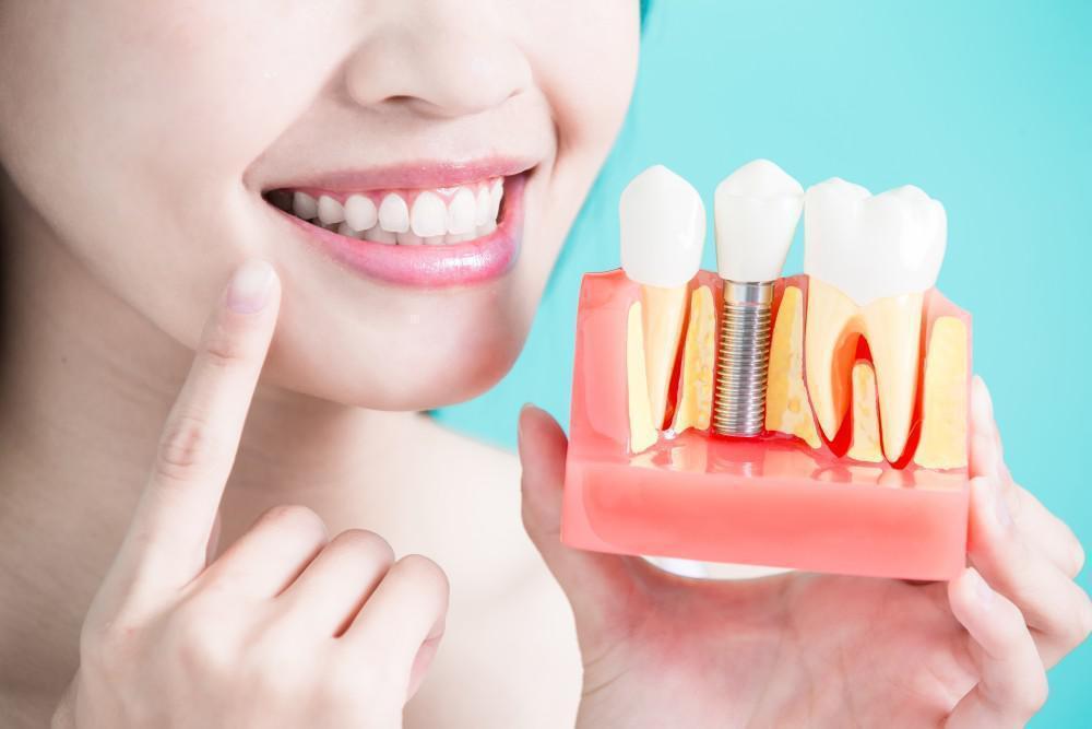 5 Benefits of Dental Implants