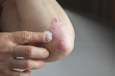 Your Treatment Options for Psoriasis