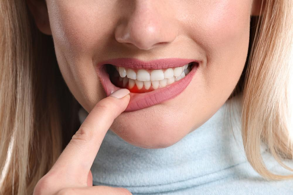 What Can I Do to Prevent Gum Disease?