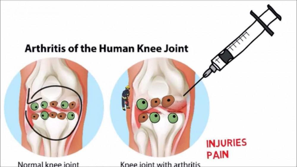 Arthritis Knee Stem Cell regenate damaged Cartilage