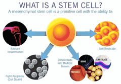 Stem Cell Treatment for Knee Arthritis Simply Men's Health Palm Beach Boca Raton