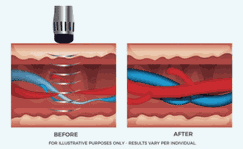 ED Shockwave Therapy Palm Beach Boca Raton Florida