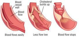 High blood cholesterol causes fatty plaque to build up in arteries that bloocs blood flow... RejuvaWAVE shock wave ED therapy West Palm Beach Boca Raton stops reverses the narrowing of blood vessels and cures ED