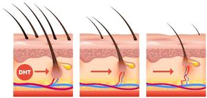 DHT Testosterone Male Pattern Hair Loss Simply Men's Health Boca Raton Palm Beach